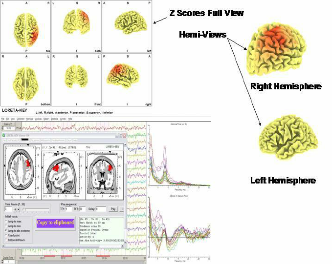 Example-of-the-use-of-Low-Resolution-Electromagnetic-Tomography-LORETA-to-evaluate